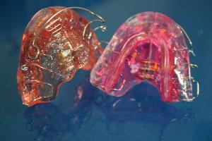 Dentista Giovinazzo Studio De Palma - Apparecchi di Ortodonzia