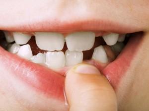 Denti fragili bambini