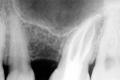 Rx trattamenti endodontici - Dentista De Palma Giovinazzo