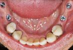 Esempio impianto dentale - Arcata superiore