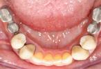 Impianto dentale: denti impiantati