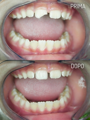 Ortodonzia Pediatrica: Ricostruzione del frammento del dente