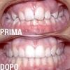 ortodonzia-03