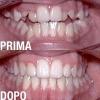 ortodonzia-04