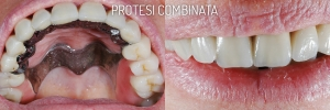 Protesi Combinata - Dentista