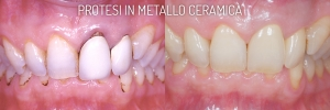 Protesi Metallo-ceramica - Dentista