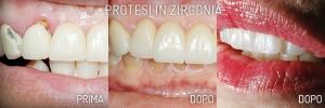 Protesi Zirconia - Dentista
